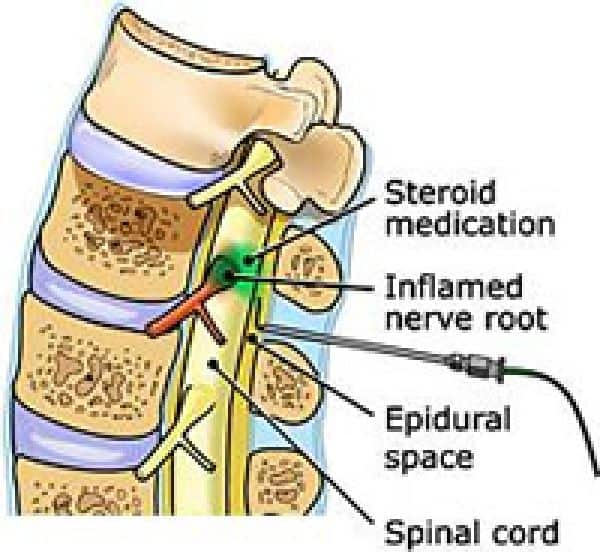 cervical epidural steroid shot side effects