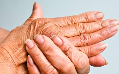 Arthritis: The Preventable Disease?