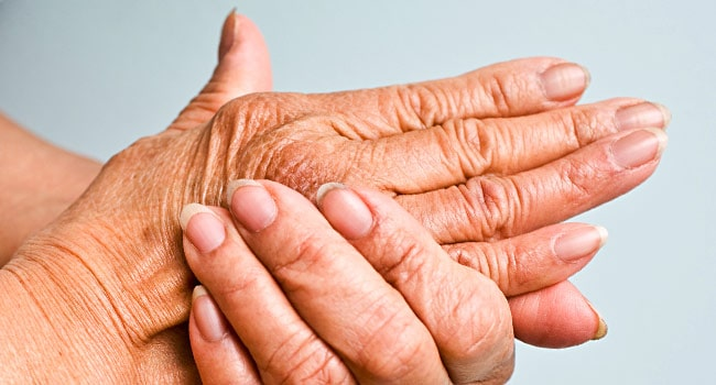 Arthritis: The Preventable Disease?