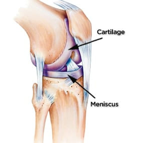 Common Causes Of Severe Knee Pain Florida Joint And Spine Institute